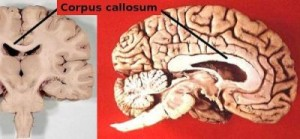 Corpus Callosum image by Looie496