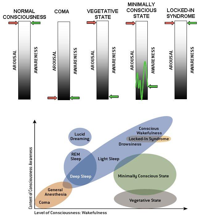Diagram of unconsciousness and awareness